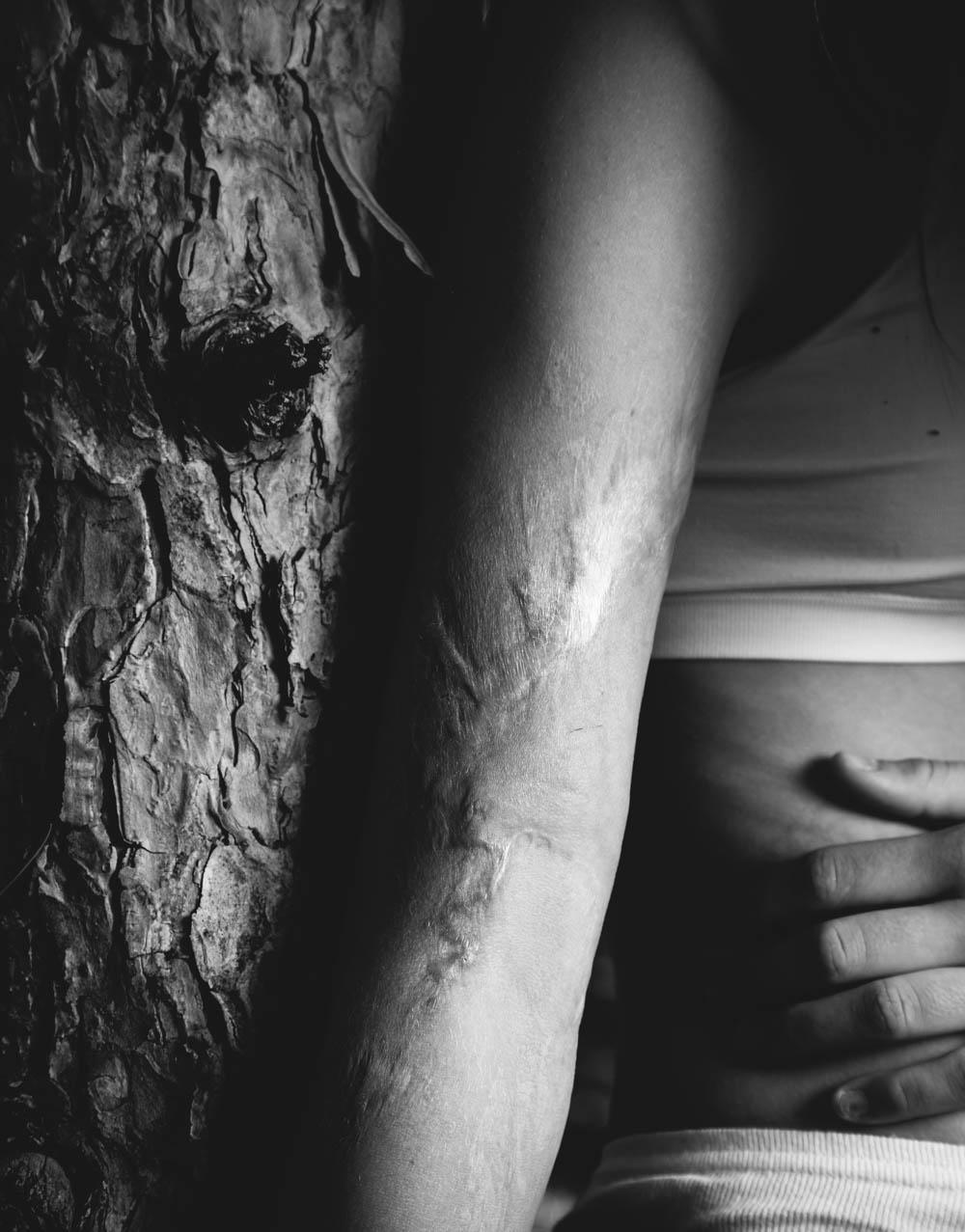 savonah-burn-scar-pine-tree-5299travis-dewitz