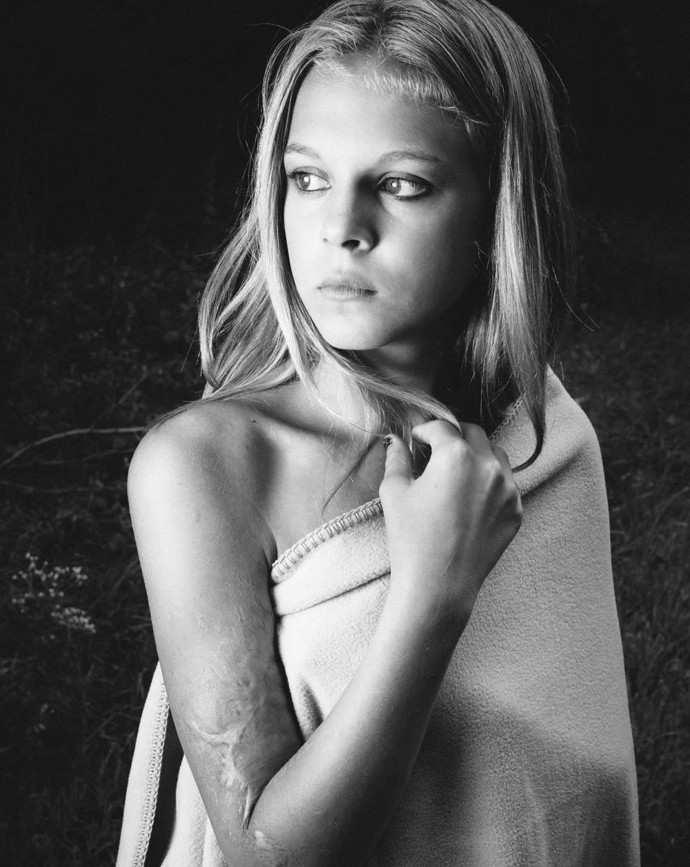 savonah-burn-scar-portrait-8108travis-dewitz